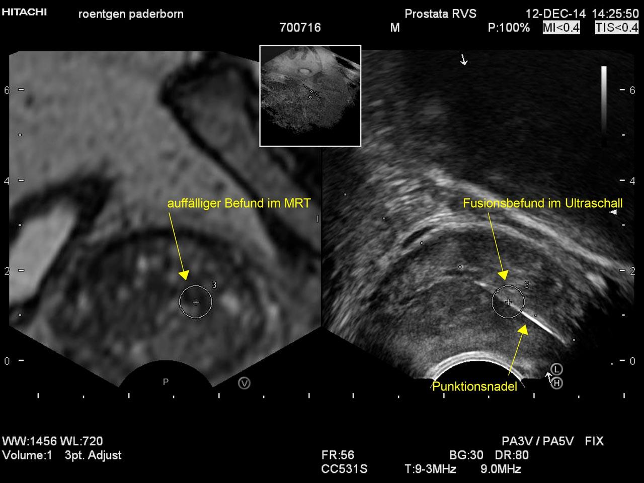 Fusion zwischen Kernspintomographie und Ultraschall bei der gezielten ultraschallgesteuerten Biopsie